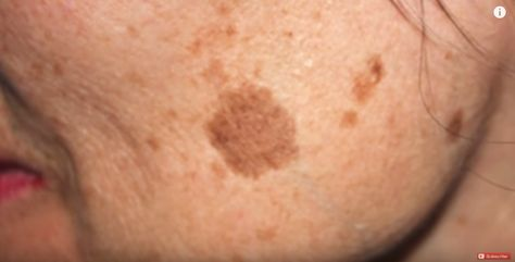 We all have brown spots, otherwise known as age spots, somewhere on our skin. They may look unsightly, but there is a simple way to remove them - and you can…