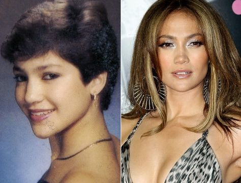 Jennifer Lopez cheek implants allegedly had cheek implants, and lip reduction, but when looking at these two images, the lip size difference