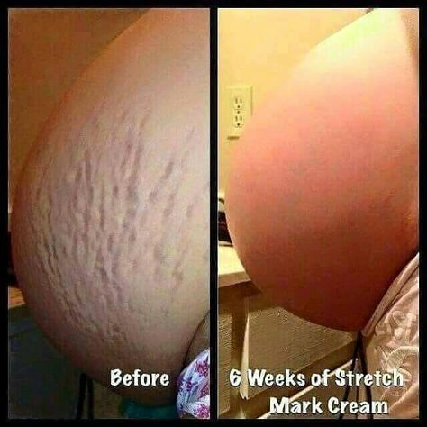 Stretmark cream! Pregnant? Nursing? Itworks does NOT leave noone behinds