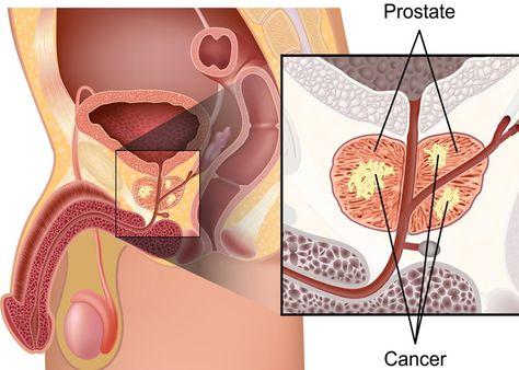 tumore alla prostata inoltre curable de