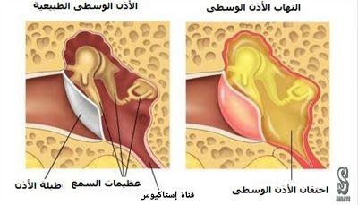 التهاب الاذن الوسطى و أعراضها تتكون أذن الإنسان من ثلاثة أجزاء الاذن الخارجية وتتكون من الصيوان القناة السمعية وظيفته Ear Infection Remedy Otitis Otitis Media