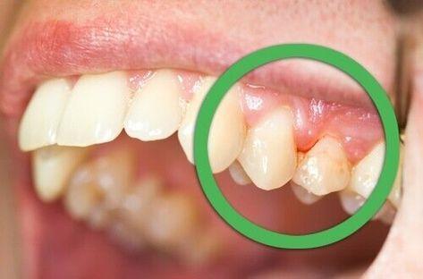 blödning i tandköttet