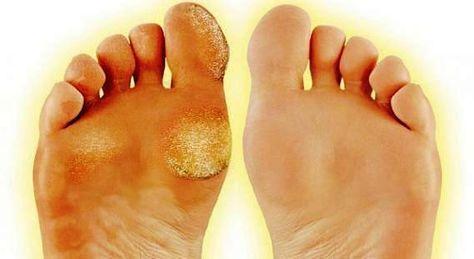 How To Treat Calluses Get Rid Of Calluses Dead Skin On Feet Feet Care Calluses Foot Callus