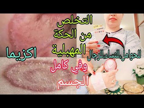 العلاج النهائي لحكة المهبل اكزيما الشديدة حتى للحامل ولك الاجر والثواب علاج حكة في جميع مناطق الجسم Youtube Movie Posters Movies Poster