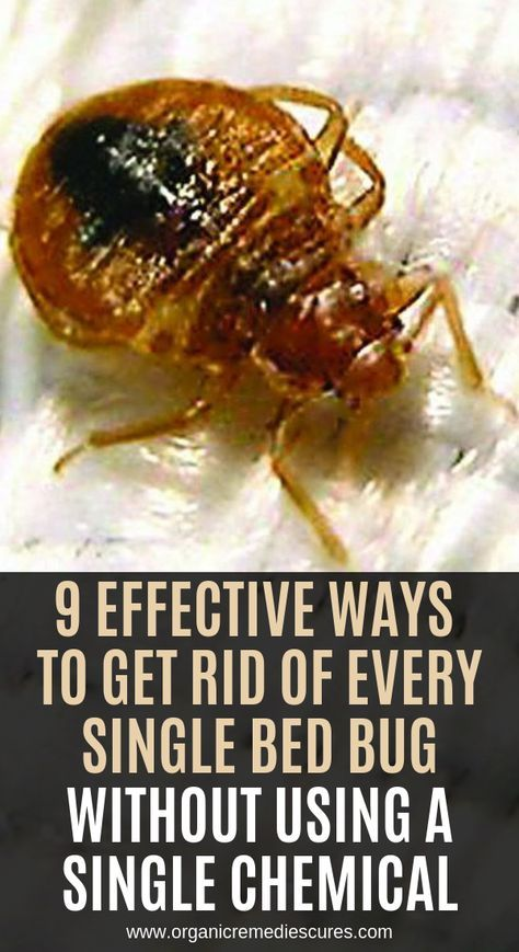 9 Effective Ways To Get Rid Of Every Single Bed Bug Without Using