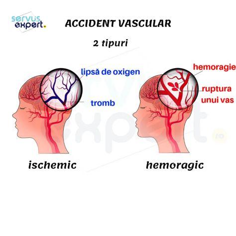 cel mai bun accident vascular cerebral pentru pierderea în greutate