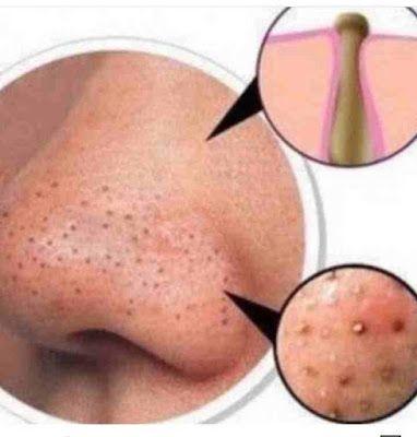 تنظيف البشرة بعمق في 4 خطوات بالبيت Clean Skin Sleep Eye Mask Gloria