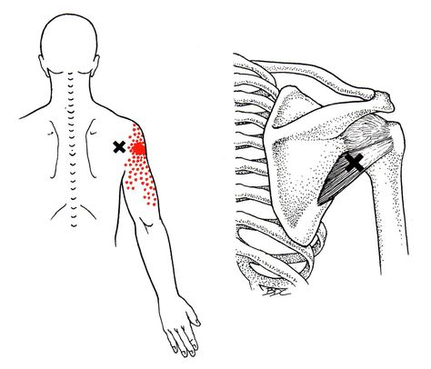 trigger point referred pain chart | Referred pain | Pinterest
