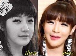 Park Bom 2ne1 Plastic Surgery Before And After Park Bom 2ne1