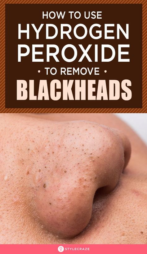 How To Use Hydrogen Peroxide To Remove Blackheads? Are you tired of those blackheads on your face? Removing them can be a challenge. But don't worry, as there is one simple and effective way of getting rid of those blackheads. It is by using hydrogen peroxide. Wondering how that can help you remove your blackheads? Then read this post! #Beauty #BeautyTips #Blackheads