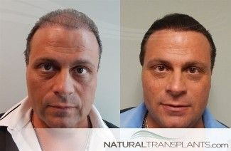 To Learn More About Norwood Hair Loss Scale Stages And Hair Loss Treatments Visit Our Website At Https Natural Help Hair Loss Hair Loss Hair Transplant Women