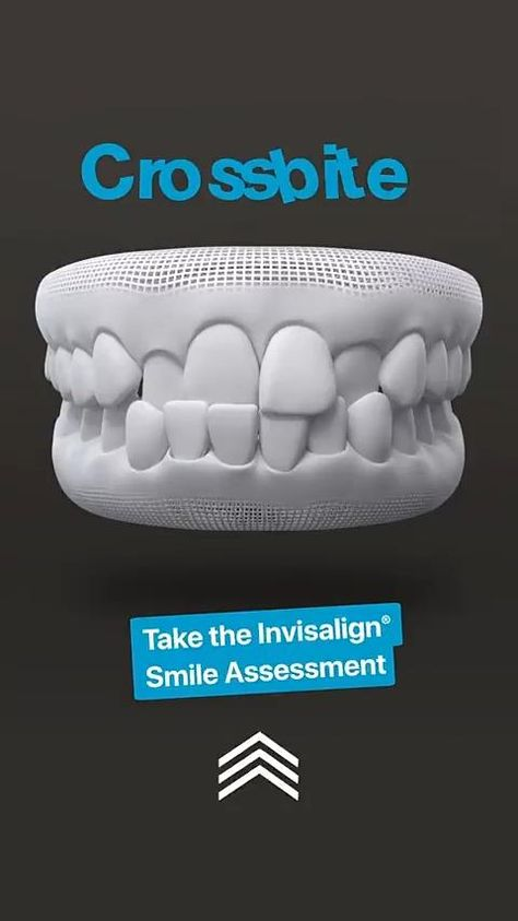 Invisalign® treatment is the modern, discreet way to fix your smile. From simple straightening to bigger fixes, see what Invisalign® clear aligners can do to help. Swipe up to learn more.