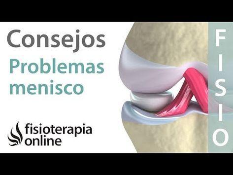 Lesión De Menisco Consejos Y Tratamiento Fisioterapéutico Ejercicios Para Rodillas Ejercicios Para Hacer Pierna Fisioterapia