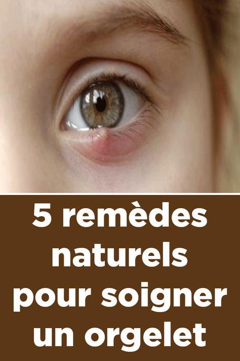 22 Idées De Yeux Remèdes Naturels Remede Santé Bien être