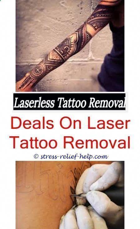 Laser Tattoo Entfernung Ergebnisse Wie Zu Hause Tattoo