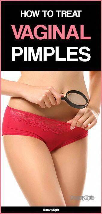 3d0316e517bf064c72248c2937bc47c6 - How To Get Rid Of Pimples On My Vigina