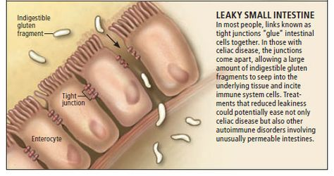 Leaky Gut - The Syndrome Linked to Many Autoimmune Diseases. Hyperpermeability or