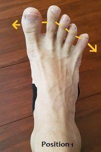 How to fix Flat Feet (Pes planus) - Posture Direct   Foot