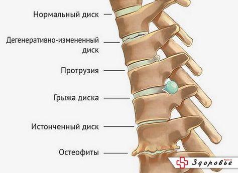Где лечить суставы на украине спорт при остеоартрозе коленного сустава