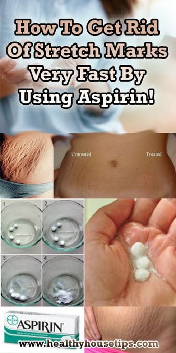 How To Get Rid Of Stretch Marks Very Fast By Using Aspirin!-Unsightly stretch marks are hard to get rid of but these natural remedies can reduce their appearance after a few application. Check out!