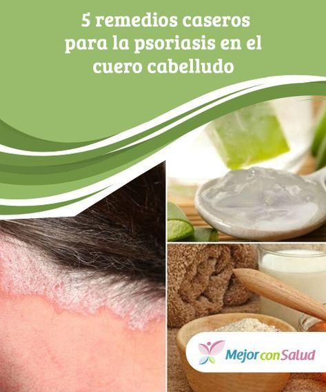 remedios caseros para la psoriasis del cuero cabelludo