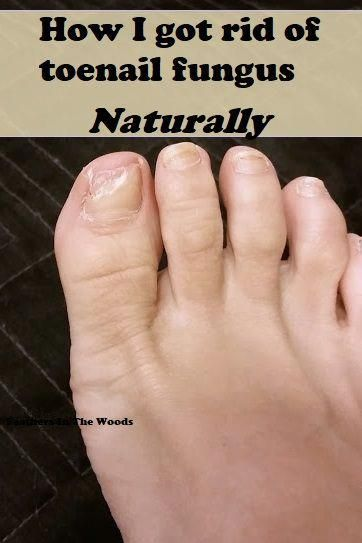 Toenail fungus is destructive to your nails and more common than you ...