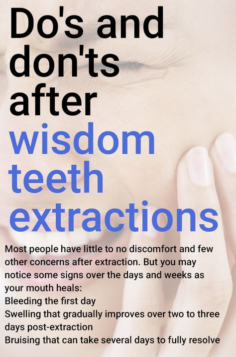 Pin On Dental Implants Cost People