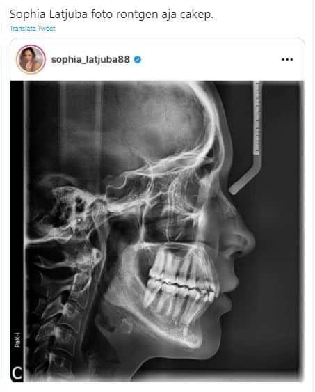 Foto Rontgen Sophia Latjuba Tuar Beragam Komentar Ngenetyuk Nyupdate Artis Instagram Tengkorak