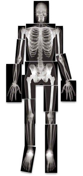 full body x ray skeleton - google search | x - rays | pinterest, Skeleton