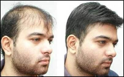 What is hair weaving baldness treatment with hair weaving in what is hair weaving baldness treatment with hair weaving in delhi pinterest hair weaves pmusecretfo Gallery