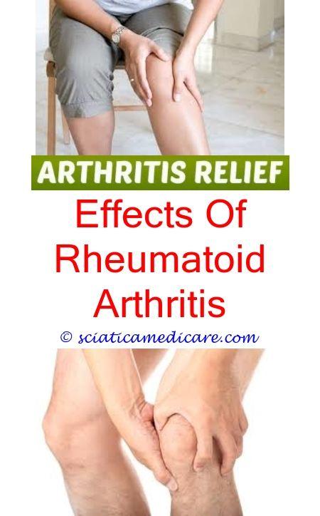 4070fa114f429626478ec5ca50b63c8d - How Long Does It Take To Get Over Reactive Arthritis
