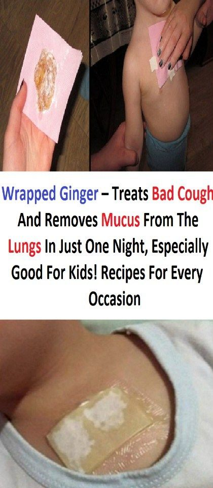 Wrapped Ginger Treats Bad Cough And Removes Mucus From The Lungs In Just One Night Something Logic Bad Cough Toddler Cough Remedies Cough Remedies For Kids