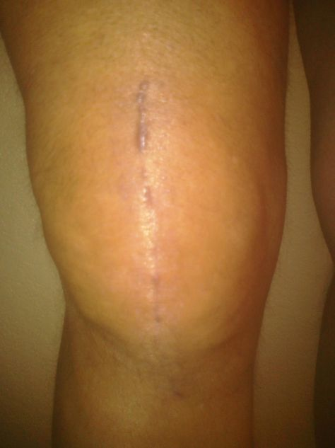 My knee at just over 8 weeks. It's looking pretty good, if I do say so myself.