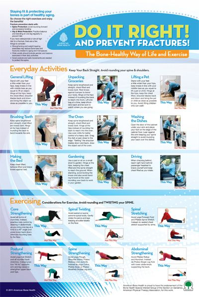 33++ What exercise is best to prevent osteoporosis ideas in 2021