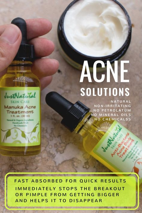 treatment for acne on face #home #remedies #the #quick #homemade #natural