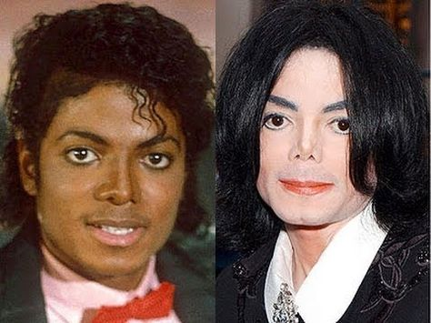 Image result for michael jackson cosmetic surgery