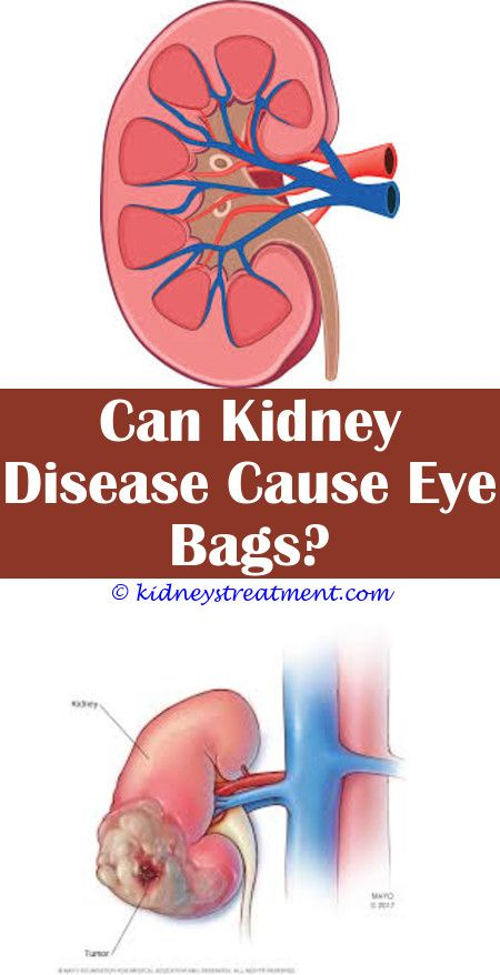 Kidney Function Medical   Polycystic kidney disease, Kidney disease, Chronic  kidney disease