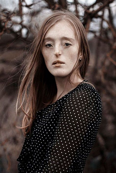 #standards #extremely #breaking #modeling #yearold #facial #defect #beauty #career #born #with #rare #her #isModel-Breaking-Beauty-Standards-Ilka-Bruhl 26-Year-Old Born With Extremely Rare Facial Defect Is Breaking Beauty Standards With Her Modeling Career26-Year-Old Born With Extremely Rare Facial Defect Is Breaking Beauty Standards With Her Modeling Career
