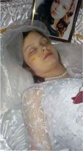 Emmett Till Exhumed Coffin Body Intact