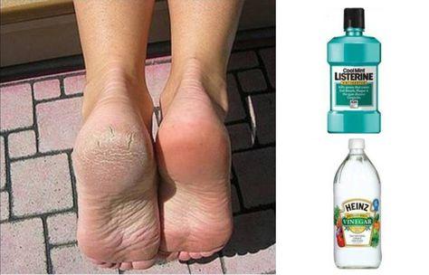 mantenimientos de pies