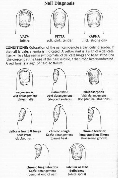 Ayurveda Nail Diagnosis Chart