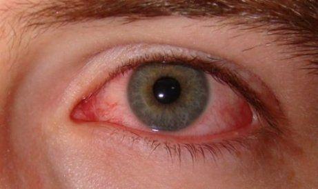 slipp torra ögon