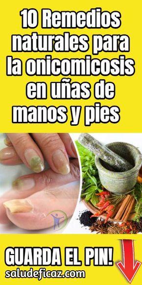 remedios caseros para los hongos en manos y pies