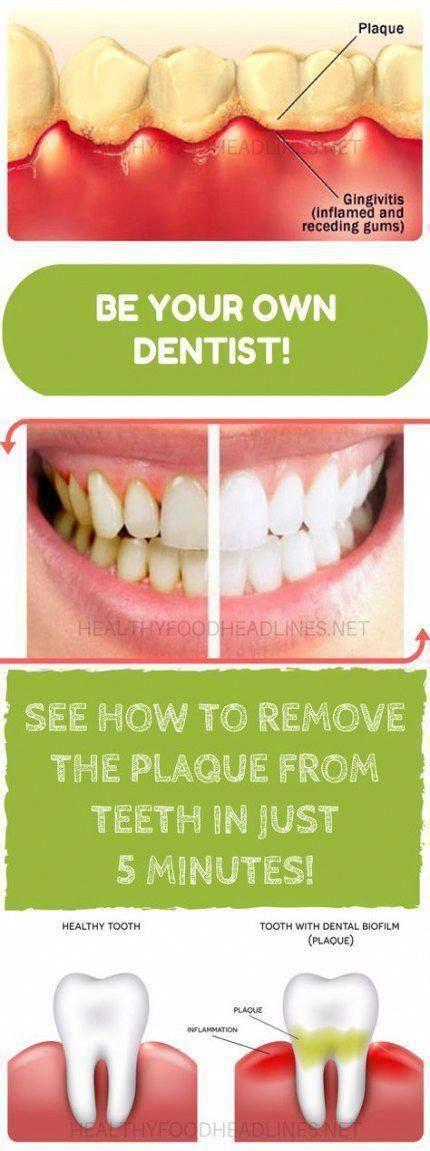 40 Trendy How To Remove Plaque From Teeth Natural #howto #HEALTH-ORALCARE #WhatAreOralCare #GumOralCare #OralCare