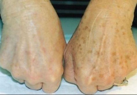 a kezeket vörös foltok borítják vörös foltok a térd alatt viszketnek