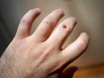 Homeopathic Medicines For Warts And Skin Tags Thuja Is The Best Homeopathic Medicine For Warts On Face Hands Neck Armpi Uses For Vicks Warts Vicks Vaporub