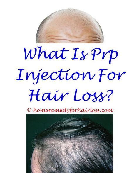 vitamin for hair loss in hindi - will conditioner cause