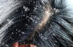 تفسير حلم رؤية قشرة الشعر فى المنام تفسير حلم قشرة الرأس