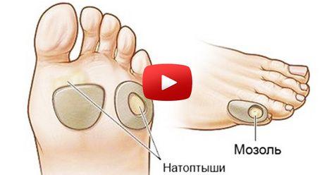 articulațiile picioarelor sunt foarte dureroase