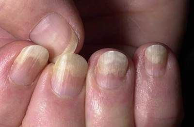 Onycholysis Separation Nails From Nailbe In Thyroid Disease